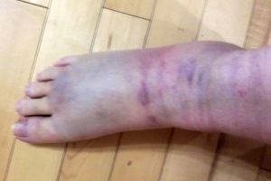 Twisted Ankle Top-Before