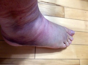 Twisted Ankle Side-Before